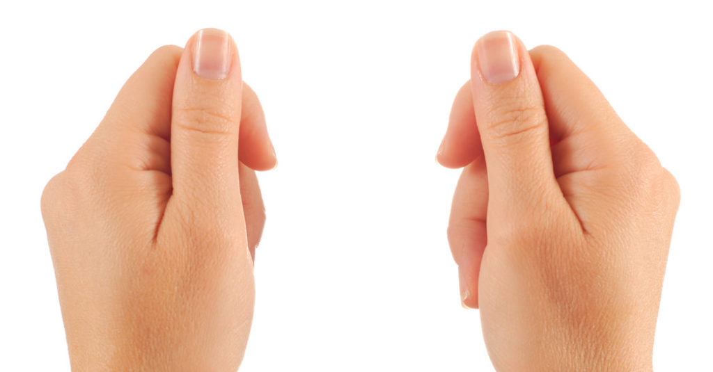 nail discoloration can be caused by subungual melanoma
