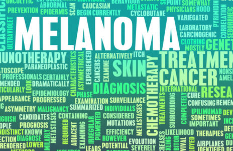 <b>QUIZ</b>: How much do you know about melanoma?