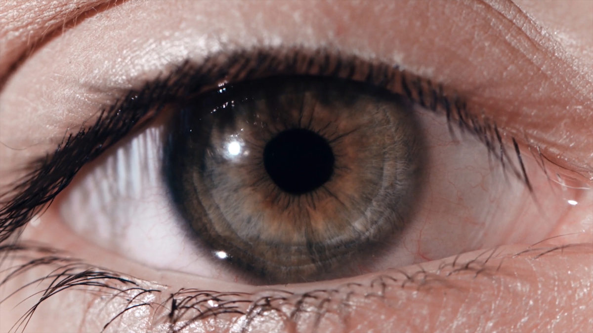 Understanding Ocular Melanoma